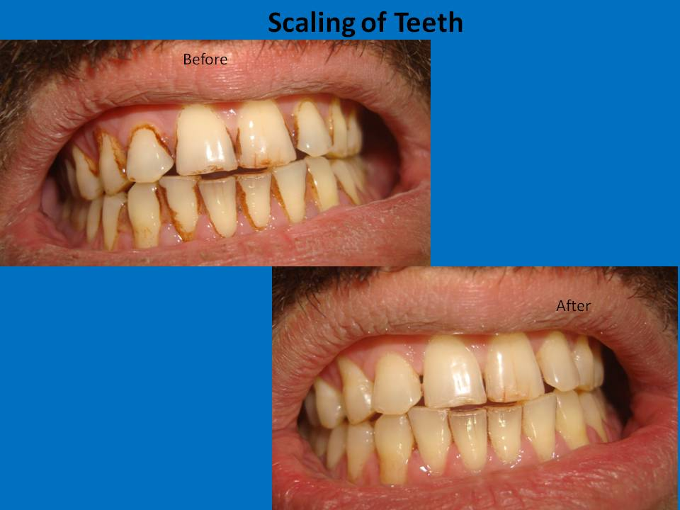 scaling-of-teeth