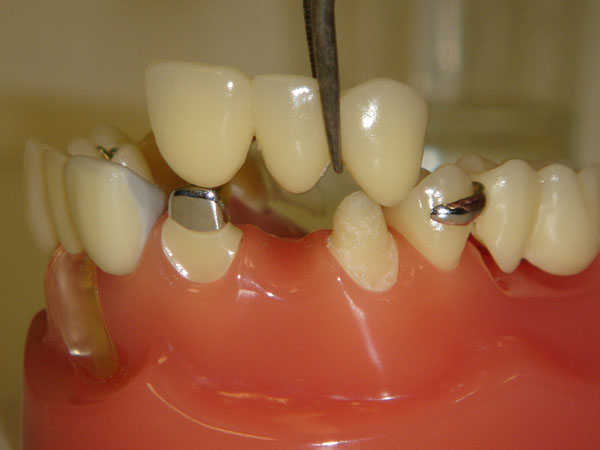 Artificial-Teeth