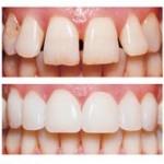 porcelain teeth vs artificial teeth