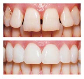porcelain teeth vs artificial teeth