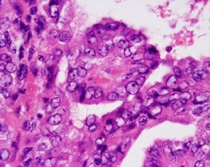 H&E stain demonstrating Orphan Annie nuclei, characteristic of papillary thyroid cancer.