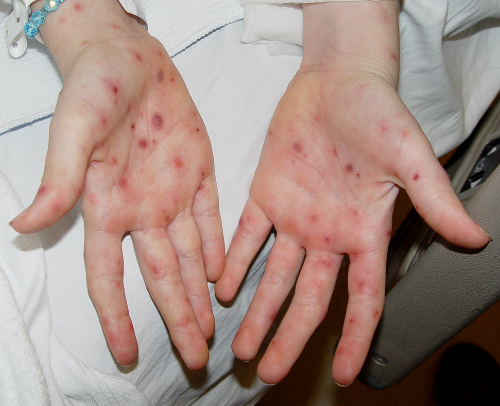 Palm Skin Rash Types, Causes, Pictures, Treatment ...