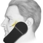 ATI™ Neurostimulation System