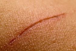 scar-revision-miami