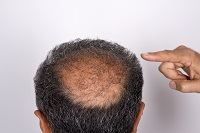 Avoiding Hair Transplant Complications