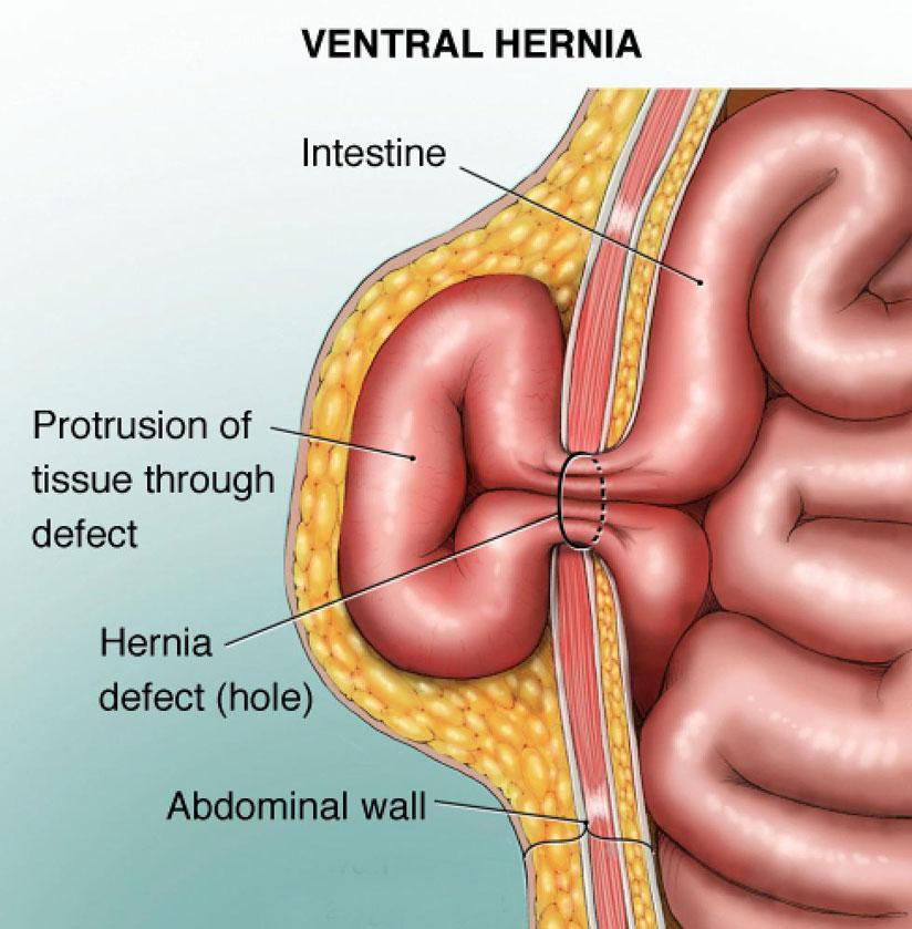 hernias and types
