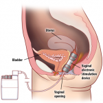 electric stimulation vagina